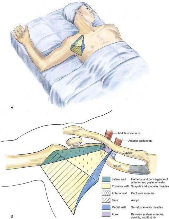 Infraclavicular Block | Anesthesia Key