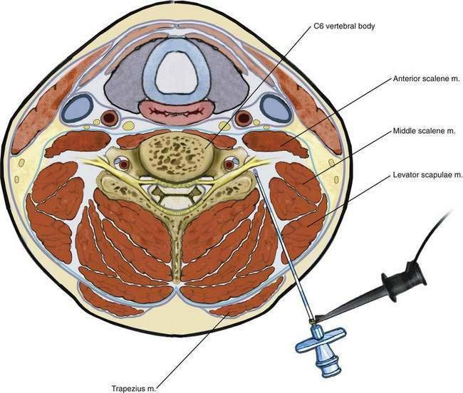 paravertebral-block