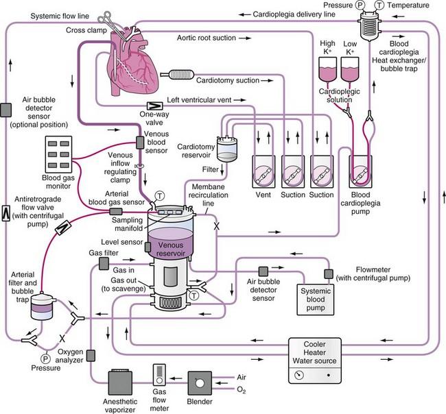 25 Heart Lung Machine Diagram