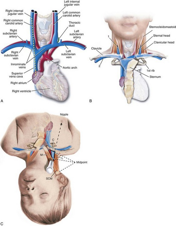Procedures For Vascular Access Anesthesia Key