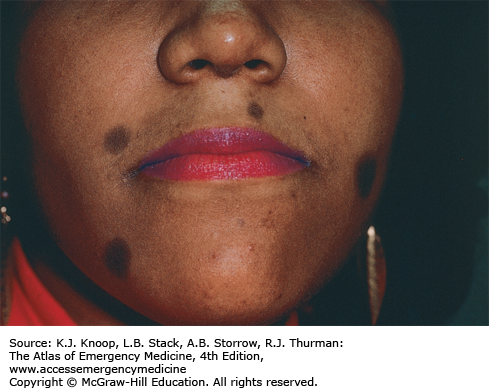 Cutaneous Conditions Anesthesia Key
