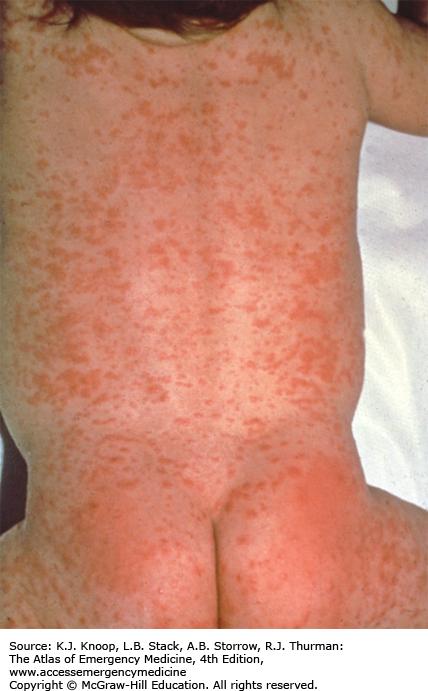 That like rash a hickey looks Slide show: