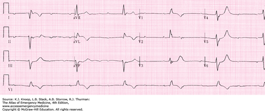 how to find abnormalities in ecg