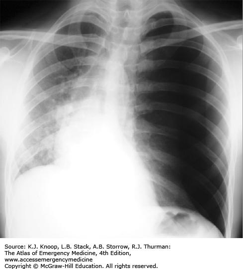 CHEST AND ABDOMEN | Anesthesia Key