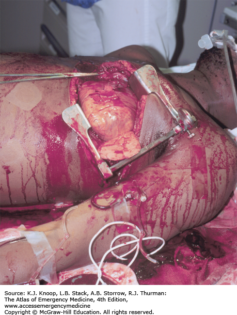 Chest And Abdomen Anesthesia Key