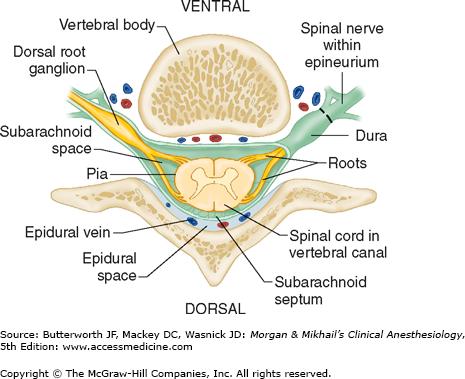 Spinal, Epidural, &amp...