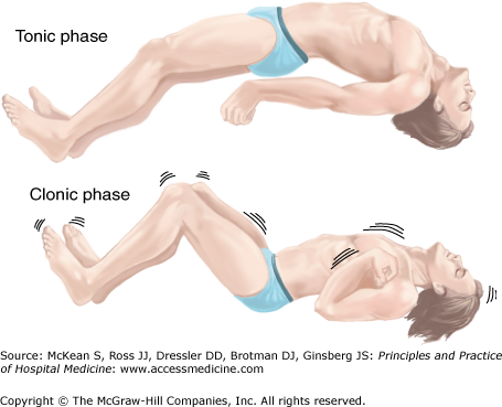 seizures | anesthesia key, Skeleton