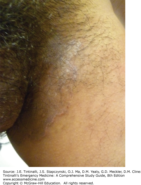 Skin Disorders Groin And Skinfolds Anesthesia Key