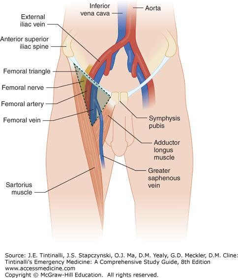 Vascular Access Anesthesia Key