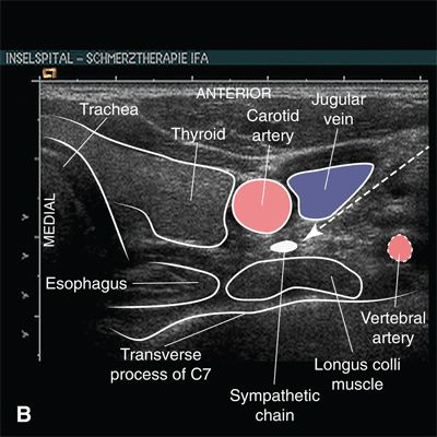 complications of cervical epidural nerve blocks with steroids
