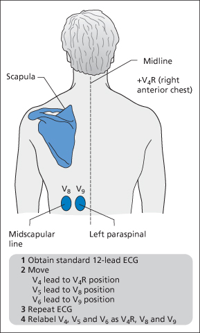 figure 12 4 how to record a 15-lead ecg