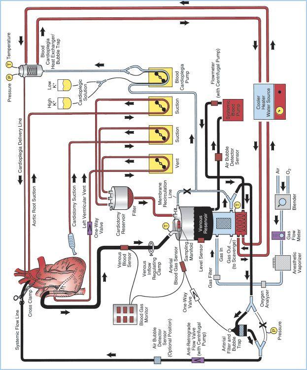 Cardiopulmonary Bypass  Equipment  Circuits  And