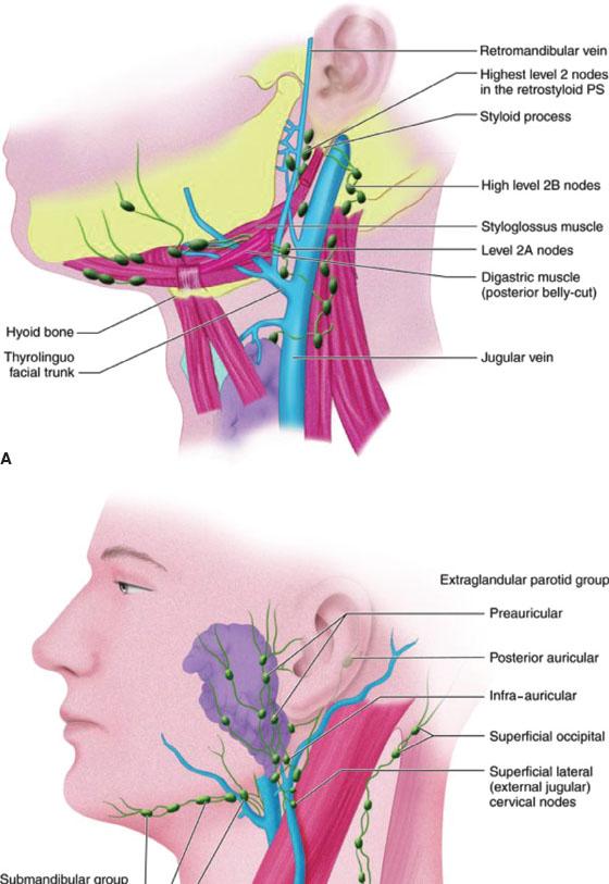 Lymphadenopathy | Anesthesia Key