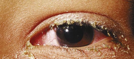 Conjunctivitis (Pink Eye) | Anesthesia Key