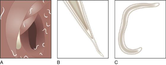 pinworms host emberi pinworm paraziták