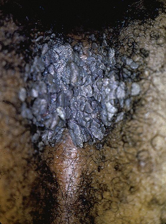 condiloame vulvo perineal