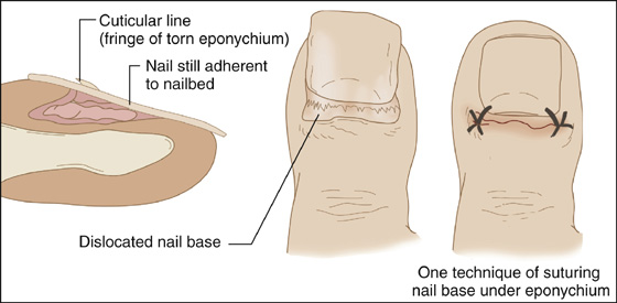Nail Root Dislocation | Anesthesia Key