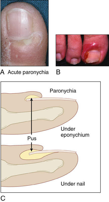 Toe Nail Bed Infection Paronychia Anesthesia Key