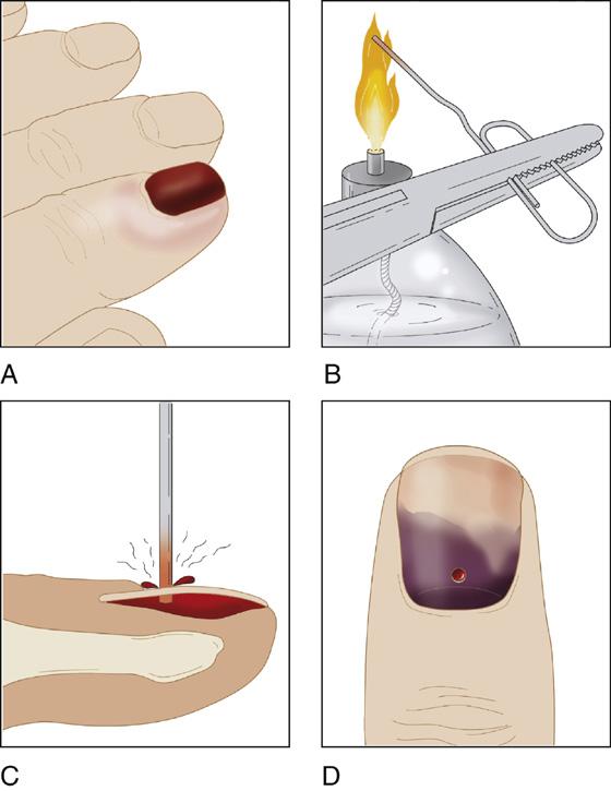 Subungual Hematoma | Anesthesia Key