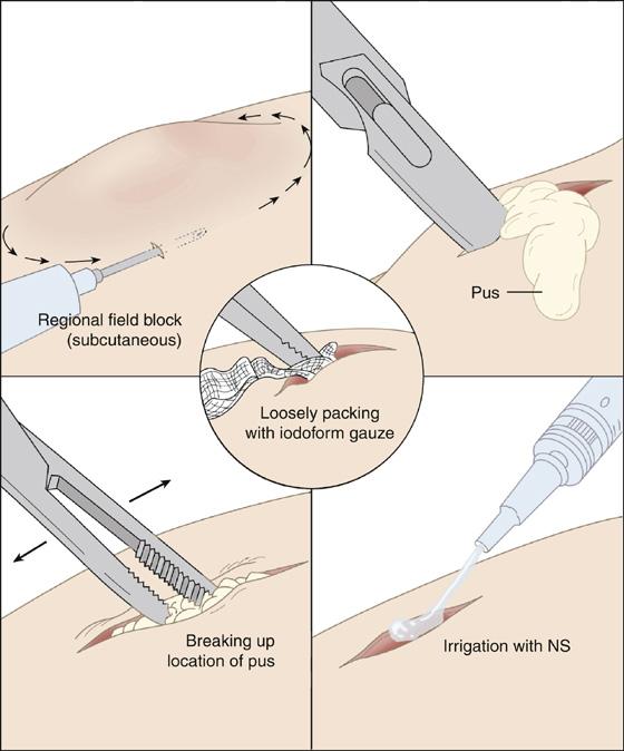 Cutaneous Abscess or Pustule | Anesthesia Key