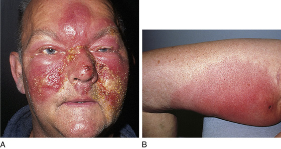 facial cellulitis Adult
