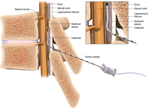 Bildresultat för epidural catheters