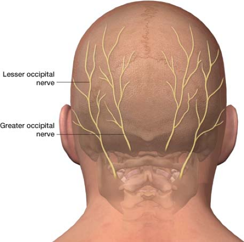 Injections For Headache Occipital Nerve Blocks And