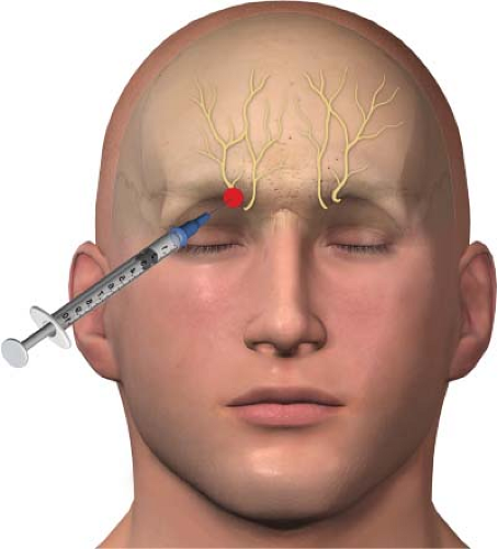 steroid injection alopecia areata