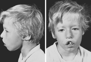 Digeorge Syndrome Facial