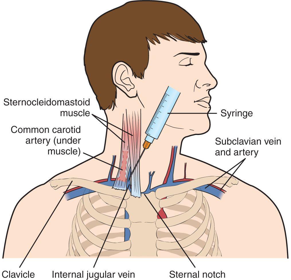 Internal Jugular Vein—Central Venous Access | Anesthesia Key
