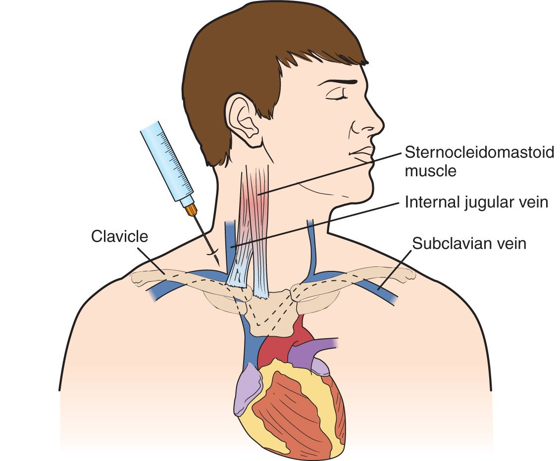 Subclavian Vein—Central Venous Access | Anesthesia Key