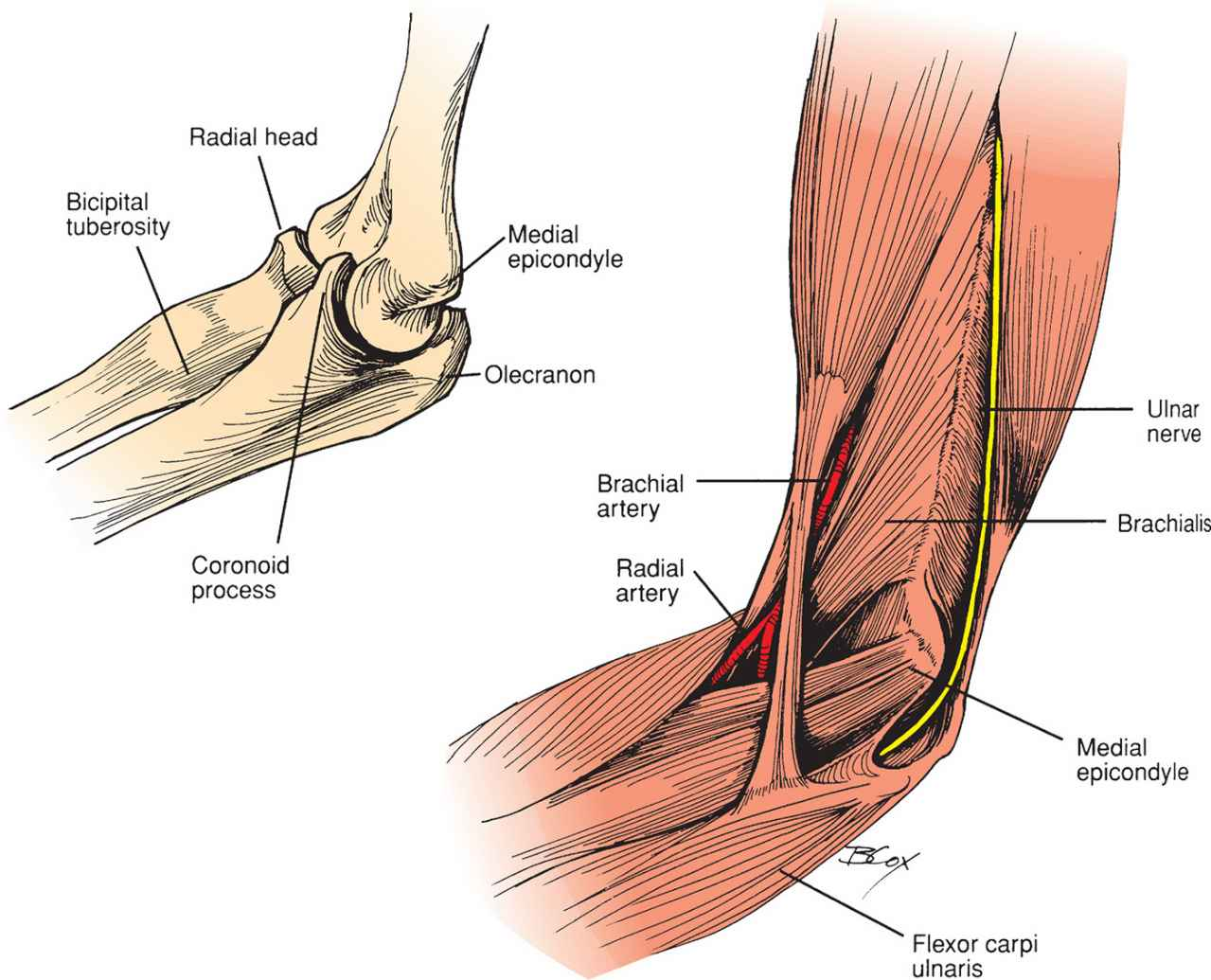 Elbow Dislocation and Reduction | Anesthesia Key