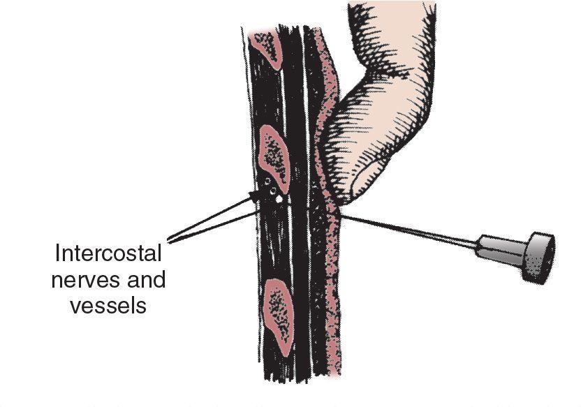 block-nerve-sperm-cord-surgery-chronic-pain