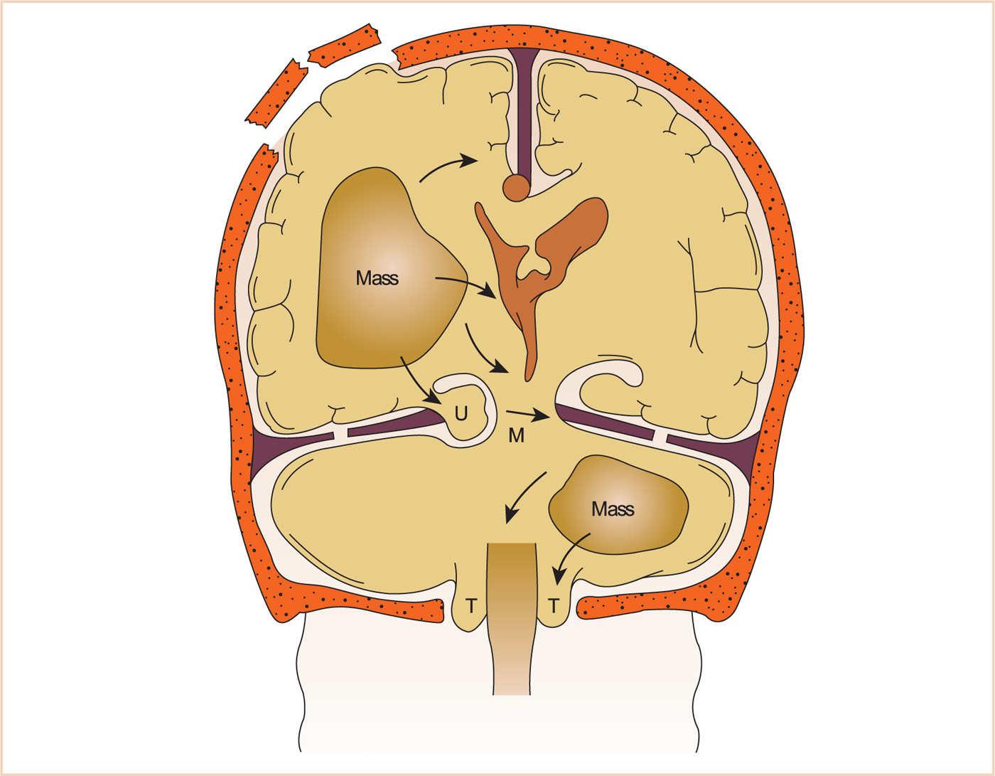 brain herniation