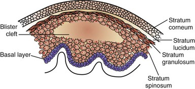 figure 29-5 longitudinal section of the epidermis showing a friction blister