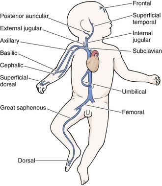 pediatric vascular access and blood sampling techniques, Cephalic Vein