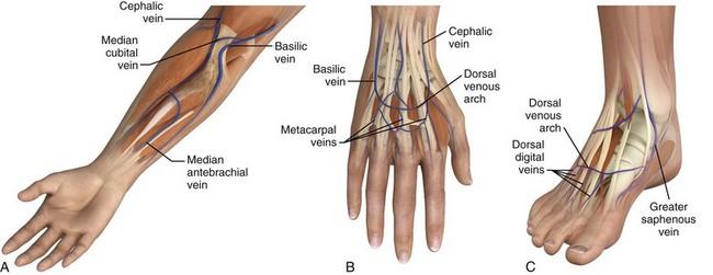 Peripheral Intravenous Access Anesthesia Key