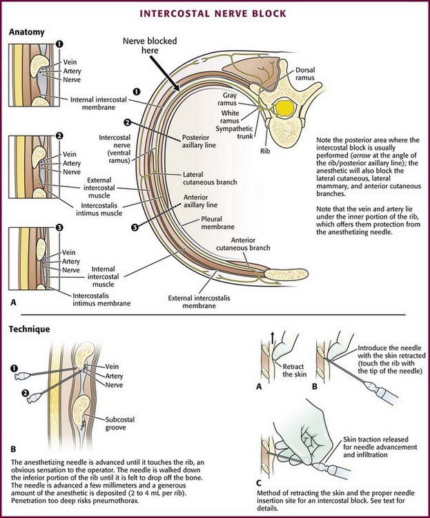 Nerve Blocks Of The Thorax And Extremities Anesthesia Key