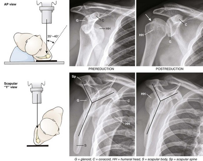 Management of Common Dislocations | Anesthesia Key