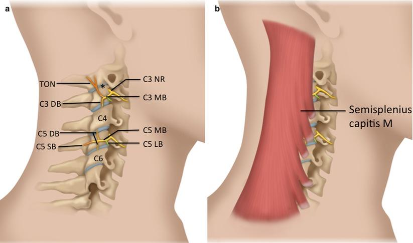 Ultrasound-Guided Cervical Facet Nerve Blocks (Medial Branch and ...