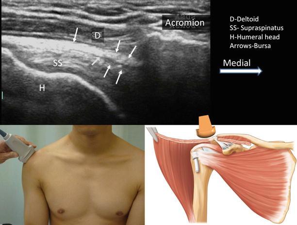 Subacromial Subdeltoid Bursa | Anesthesia Key