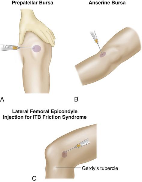 Bursitis Anesthesia Key