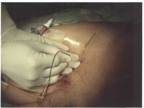 perioperative management with peripheral nerve block anesthesia, Muscles