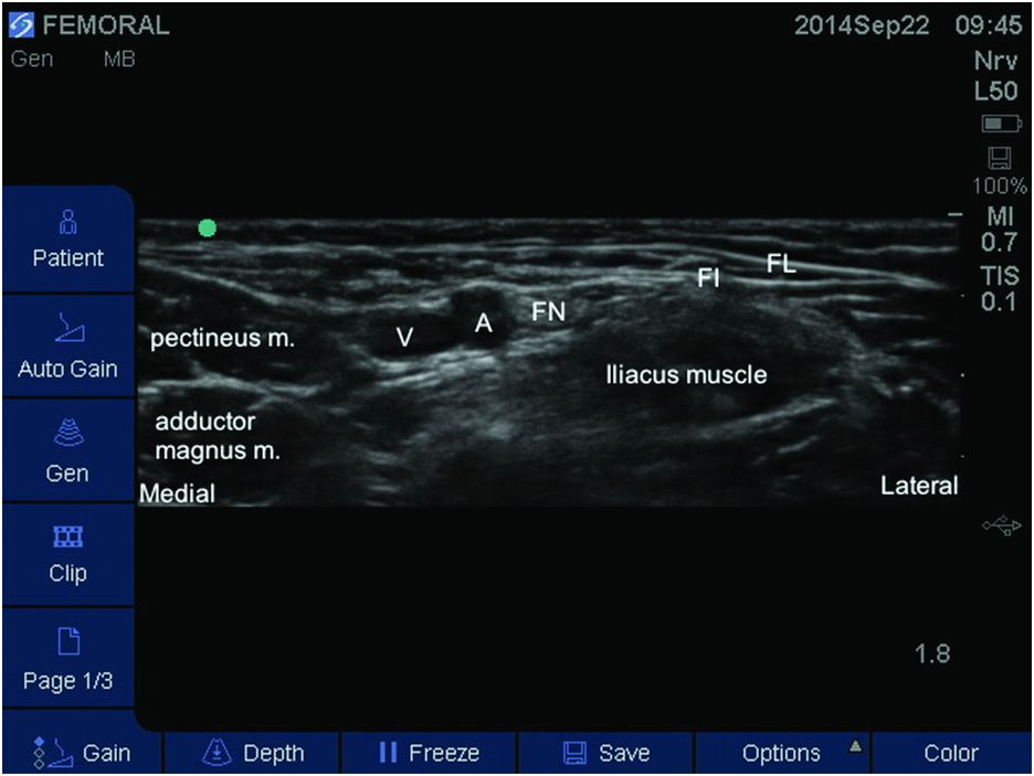 Ultrasound Guided Femoral Nerve Block Anesthesia Key