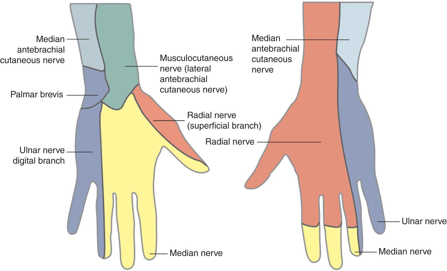 Wrist Block | Anesthesia Key