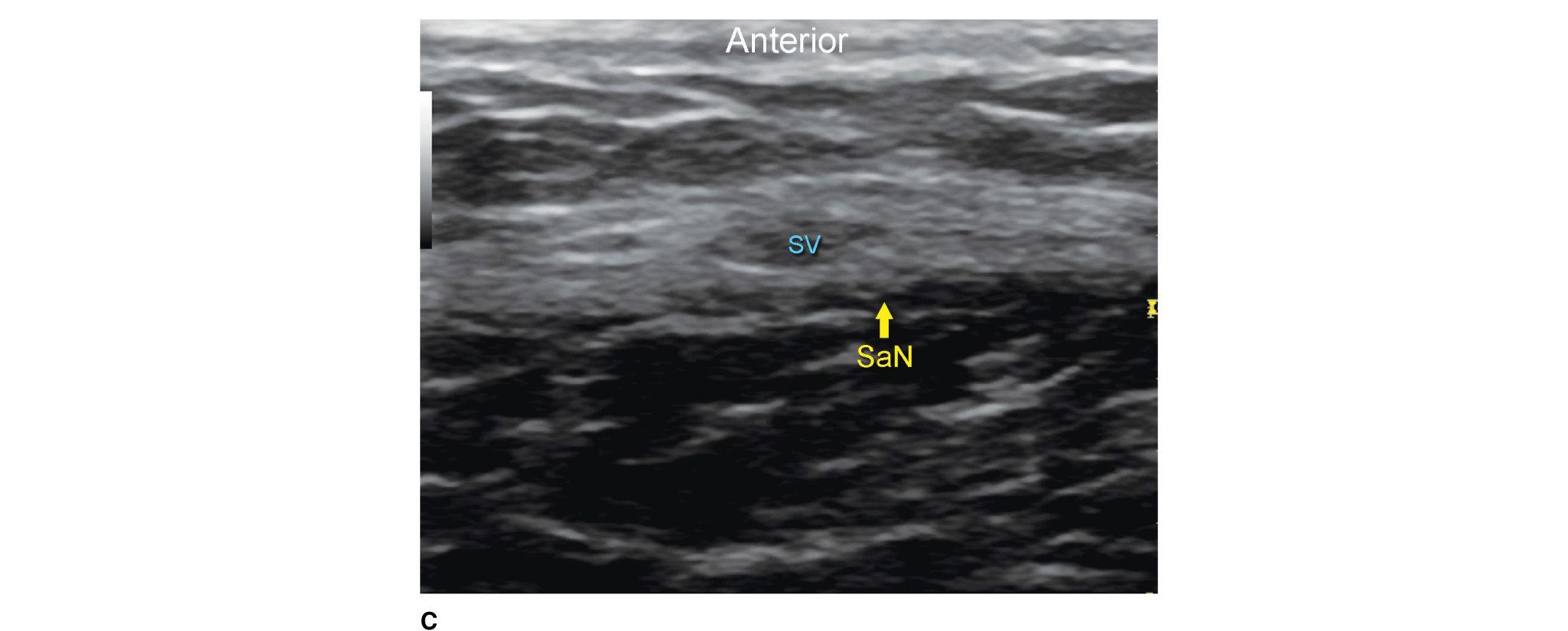 Ultrasound-Guided Saphenous Nerve Block | Anesthesia Key