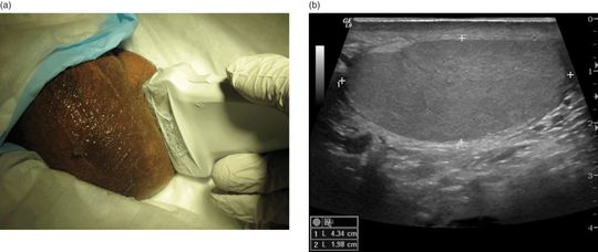 male genitourinary  scrotal pain  swelling