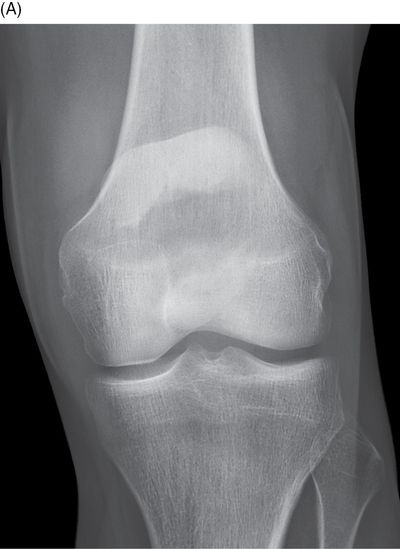 Fractures And Dislocations Of The Knee And Leg Anesthesia Key