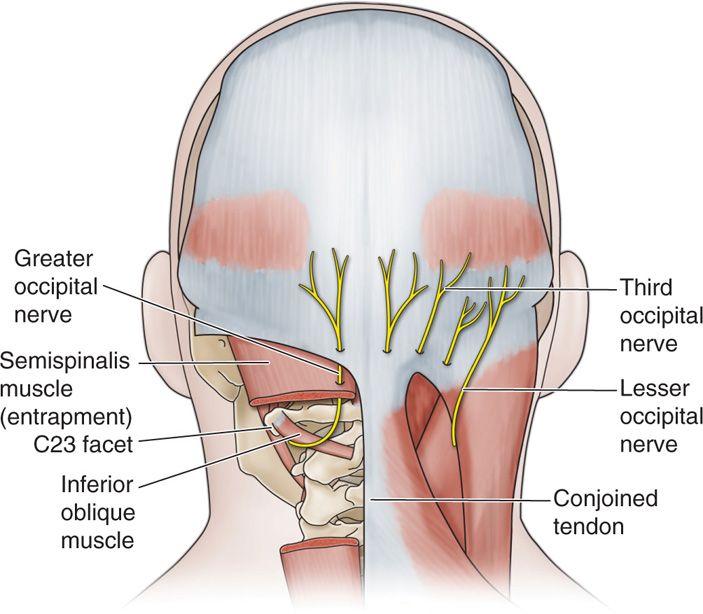 Occipital Nerve Blocks | Anesthesia Key