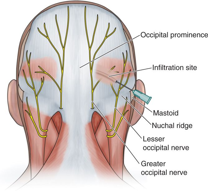 Occipital Nerve Blocks | Anesthesia Key
